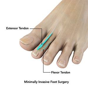 Minimally Invasive Bunion Surgery